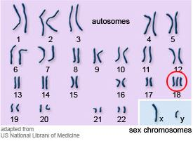 Karotype of Trisomy 18